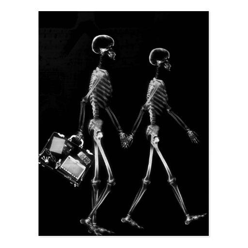 Röntgenstrahl-Skeleton Paar-Reisen Schwarz-weiß Postkarte