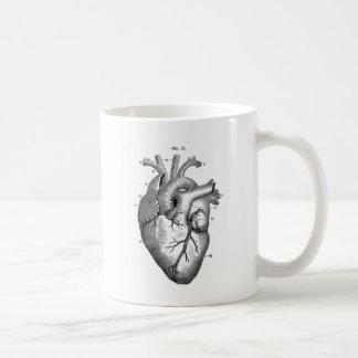 Schwarzes anatomisches Herz Kaffeetasse
