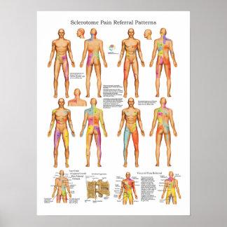 Sclerotome viszerales Schmerz-Empfehlungs-Plakat Poster
