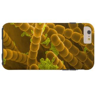 SEM-Bild des Tradescantia-Blütenstaubs und der Tough iPhone 6 Plus Hülle