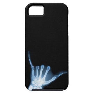 Shaka Zeichen-Röntgenstrahl (Fall lose) iPhone 5 Etui