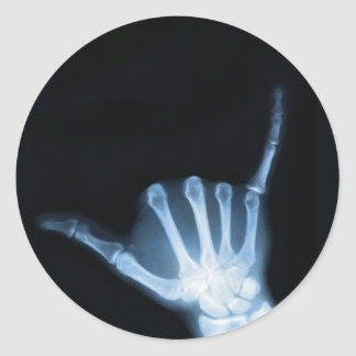Shaka Zeichen-Röntgenstrahl (Fall lose) Runder Aufkleber