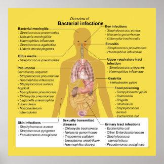 Überblick über bakterielle Infektion Poster