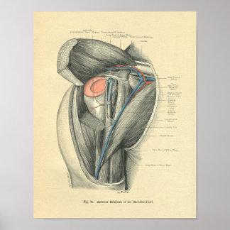 Vintage Frohse Anatomie des Armes u. der Schulter Poster