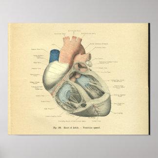 Vintage Frohse Anatomie des menschlichen Herzens Poster