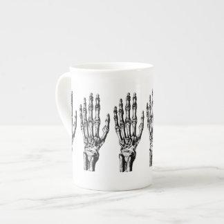 Vintage skelettartige Hand Porzellantasse