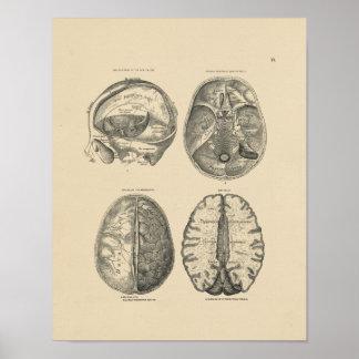 Vintager Druck der Gehirn-Schädel-Anatomie-1880 Poster