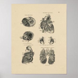 Vintager Herz-Lungen-Druck der Anatomie-1880 Poster
