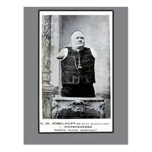 Vintages Foto des Armless und Legless Mannes Postkarten