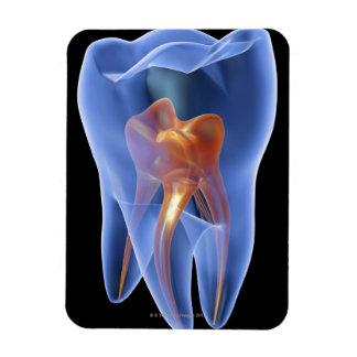 Zahn, transparenter Querschnitt eines Molars Eckige Magnete